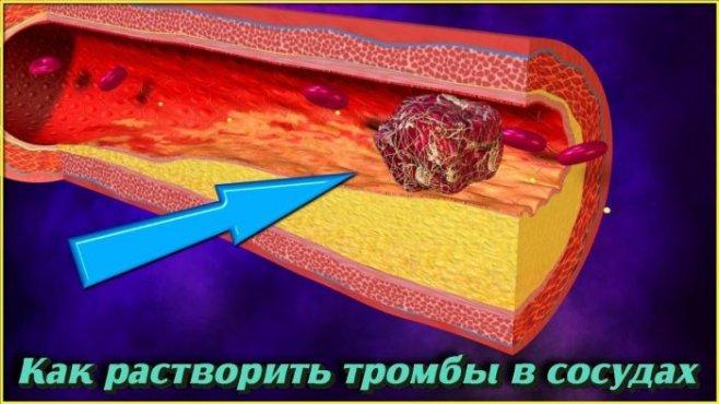Как растворить тромбы в сосудах