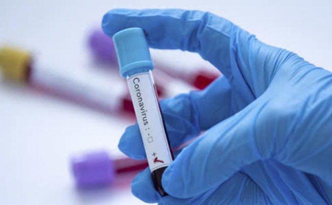 Эффектные способы защиты от коронавируса