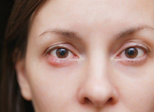 Ячмень на глазу: народные и медикаментозные методы лечения